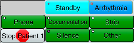 Figure 4. Alarm type (top) and monitor watcher responses (bottom, green) for a patient whose warning alarm went off.